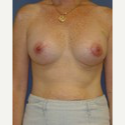 35-44 year old woman treated with Breast Augmentation after 3622575