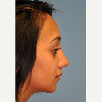 18-24 year old woman treated with Rhinoplasty after 3332364