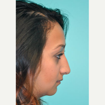 18-24 year old woman treated with Rhinoplasty before 3332364