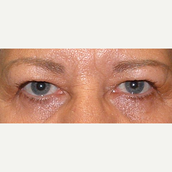 55-64 year old woman treated with Eyelid Surgery before 3441140