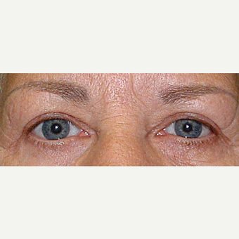 55-64 year old woman treated with Eyelid Surgery after 3441140