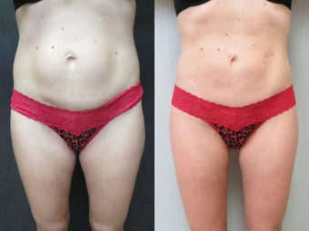 35-44 year old woman treated with Liposuction before 3299773