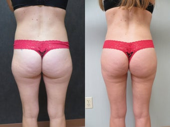 35-44 year old woman treated with Liposuction 3299773