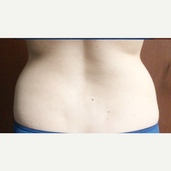 25-34 year old woman treated with SculpSure after 3265760