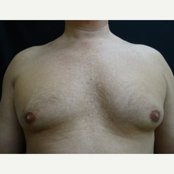 45-54 year old man treated with CoolSculpting
