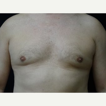 45-54 year old man treated with CoolSculpting after 1679684