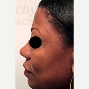 45-54 year old woman treated with Revision Rhinoplasty