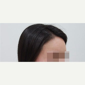 25-34 year old woman treated with Forehead Reduction after 2006871
