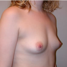 Breast Augmentation before 3680686