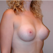 Breast Augmentation after 3680686