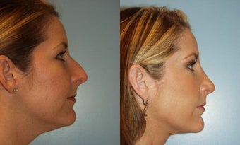 Rhinoplasty and Facial Liposuction before 319575