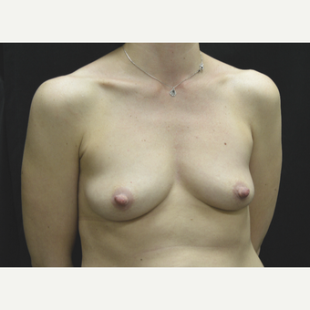 35-44 year old woman treated with Breast Implants before 3181787