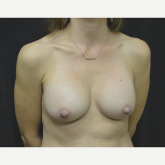 35-44 year old woman treated with Breast Implants after 3181787