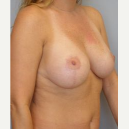 35-44 year old woman treated with Breast Lift after 3122315