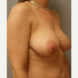 35-44 year old woman treated with Breast Lift before 3122315