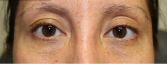 35-44 year old woman treated with Ptosis Surgery after 3238852
