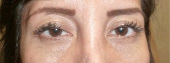 35-44 year old woman treated with Ptosis Surgery before 3238852
