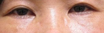 Bilateral Lower Blepharoplasty after 908279