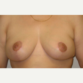 Breast lift and areola reduction on 47 year old mother of 3 after 3201501