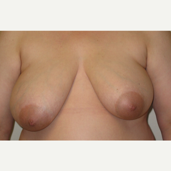 Breast lift and areola reduction on 47 year old mother of 3 before 3201501