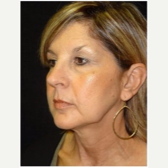 55-64 year old woman treated with Ultherapy after 3179867