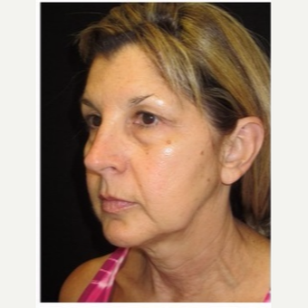 55-64 year old woman treated with Ultherapy before 3179867