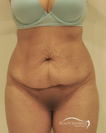Extended Tummy Tuck  before 3000888