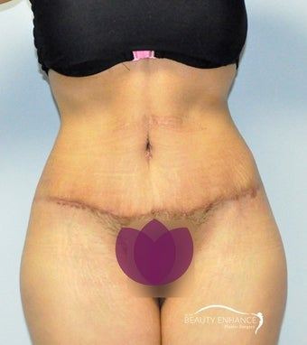 Extended Tummy Tuck  after 3000888