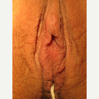 35-44 year old woman treated with Labiaplasty after 3694063