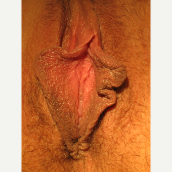 35-44 year old woman treated with Labiaplasty before 3694063