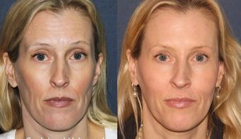 35-44 year old woman treated with Sculptra