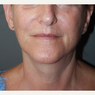 Laser Treatment after 2293867