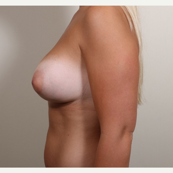 25-34 year old woman treated with Breast Augmentation with constricted (tubular, tuberous) breast after 2989440