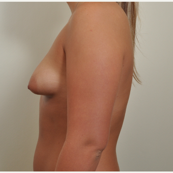25-34 year old woman treated with Breast Augmentation with constricted (tubular, tuberous) breast before 2989440