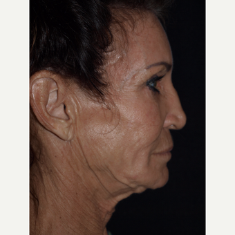 65-74 year old woman treated with Facelift before 3082364