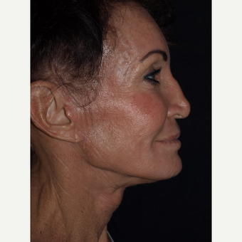 65-74 year old woman treated with Facelift after 3082364