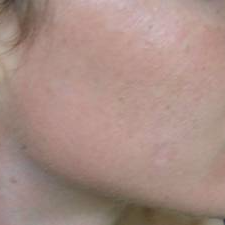 25-34 year old woman treated with Mole Removal after 2744955