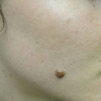 25-34 year old woman treated with Mole Removal before 2744955
