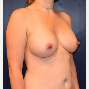 35-44 year old woman treated with Breast Implants after 3384906
