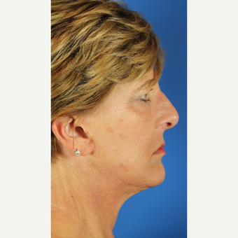 Facelift, Fractional CO2 Laser Skin Resurfacing after 3466440