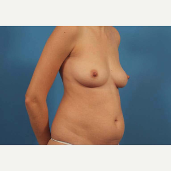 25-34 year old woman treated with Mini Tummy Tuck before 3787159