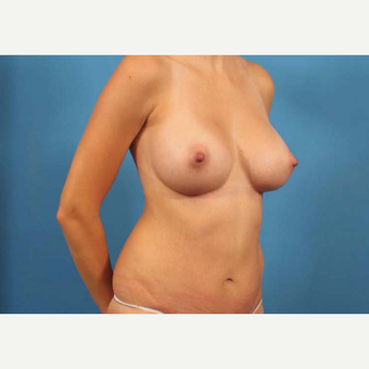 25-34 year old woman treated with Mini Tummy Tuck after 3787159