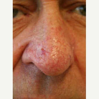 55-64 year old man treated with Rosacea Treatment using the Gemini KTP laser before 2261391