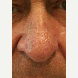 55-64 year old man treated with Rosacea Treatment using the Gemini KTP laser after 2261391