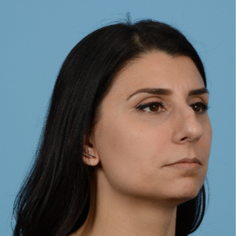 35-44 year old woman treated with Rhinoplasty before 3684731