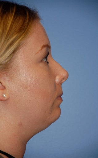Facial Liposuction before 217120