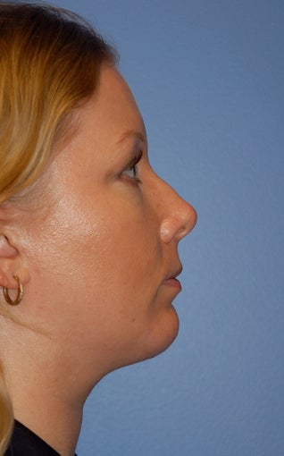 Facial Liposuction after 217120