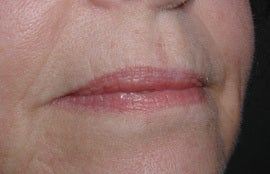 Lip Augmentation in middle aged lady