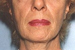 Modfied Advanced Phenol Peel to the Face  ( Declined Face Lift)