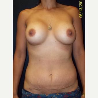 36  year old woman treated with Silicone Breast Augmentation after 3201732